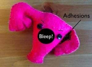 Left leaning uterus with adhesions interfering with uterine tube function. And possible cause of ovary pain.