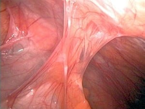 Adhesions after appendectomy