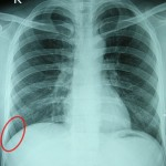 Costodiaphragmatic Recess in red circle.